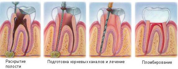 Гранулема зуба что это такое отзывы