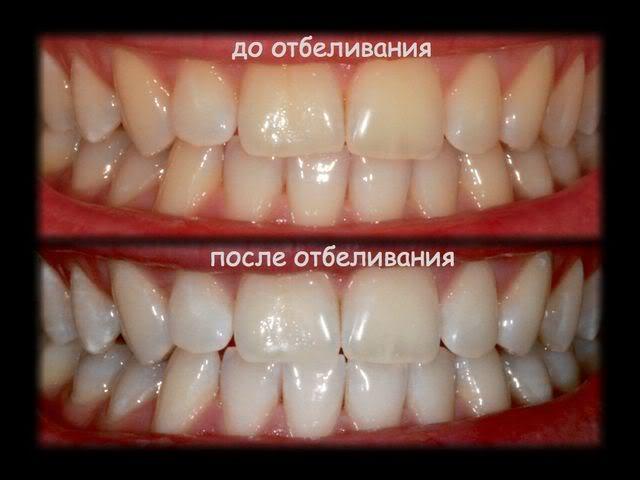 Как сделать так чтобы зубы были белоснежные