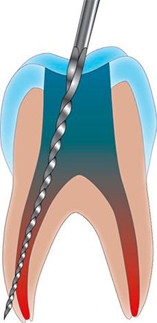 Что такое прободение зуба