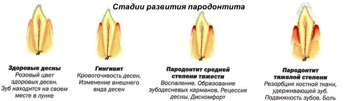 Схема инъекций при парадонтите